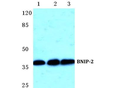 BNIP2 Polyclonal Antibody