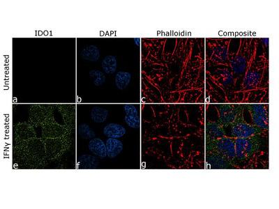 IDO Recombinant Rabbit Monoclonal Antibody (7H8L17)