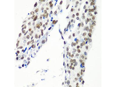 HTATSF1 Polyclonal Antibody