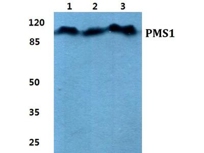 PMS1 Polyclonal Antibody
