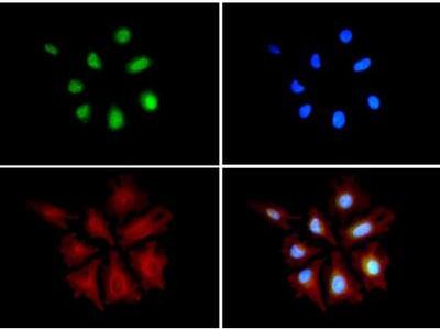 AKAP8L Polyclonal Antibody