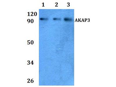 AKAP3 Polyclonal Antibody