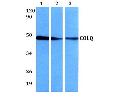 COLQ Polyclonal Antibody
