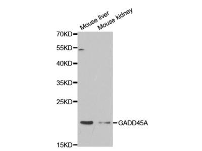 GADD45A Polyclonal Antibody
