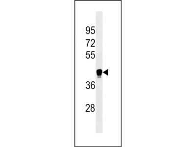 LILRA6 Polyclonal Antibody