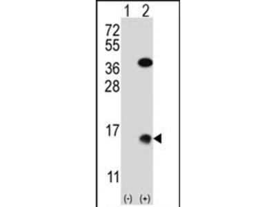 SUMO2 Polyclonal Antibody