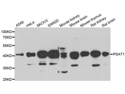 PSAT1 Polyclonal Antibody