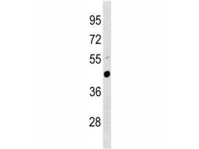 Urokinase Antibody (UPA, Plau)
