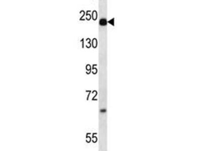 Alpha-2-macroglobulin Antibody