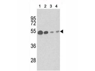 Tubulin beta 1 Antibody / TUBB1 (Mouse Monoclonal)