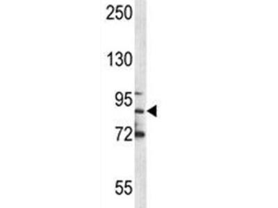 MPO Antibody (Myeloperoxidase)