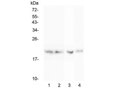 BCMA Antibody / CD269 / TNFRSF17