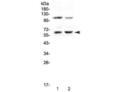 AMPK alpha 1 Antibody / PRKAA1