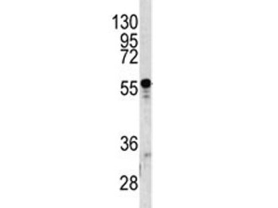 A1BG Antibody