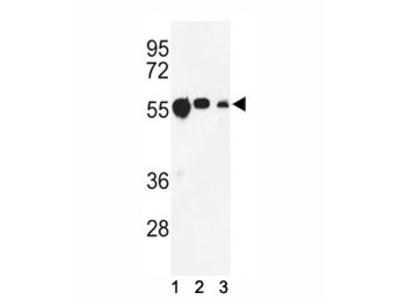 Tubulin beta 1 Antibody (TUBB1)