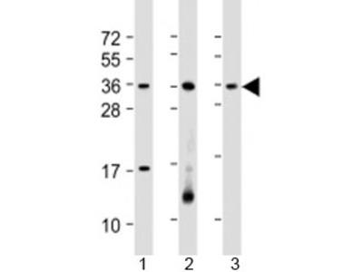 RSPO1 Antibody / R-spondin-1