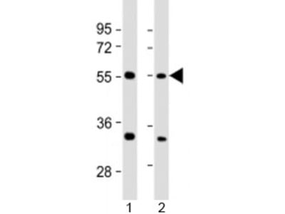 AAAS Antibody / Adracalin