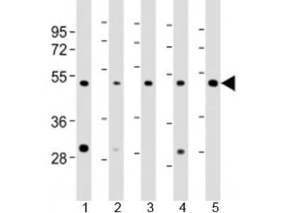 LASS4 Antibody / CerS4