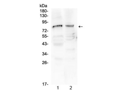 ChAT Antibody / Choline acetyltransferase