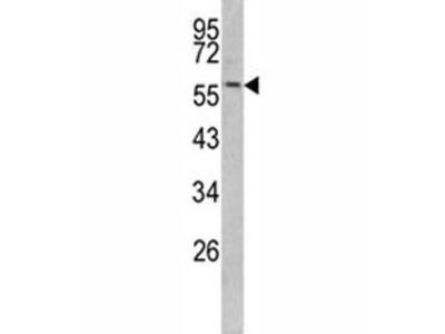 Keratin-14 Antibody