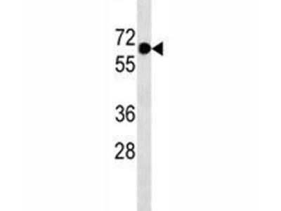 PLAP Antibody (Mouse Monoclonal)