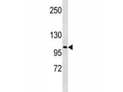 LOXL2 Antibody