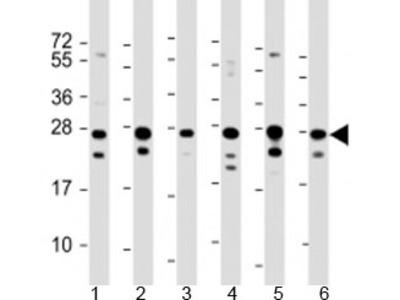 PIMT Antibody / PCMT1