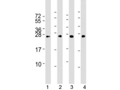 RAB5B Antibody (Mouse Monoclonal)