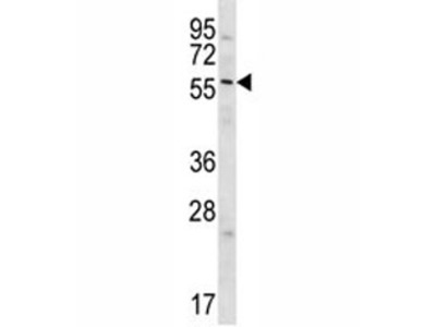 Glypican 3 Antibody (GPC3)