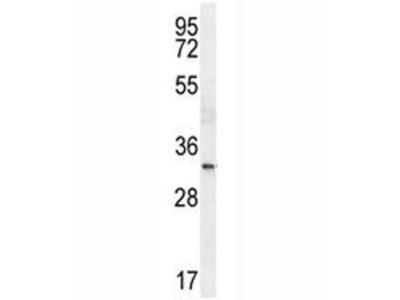 NKX2.1 Antibody (TTF1)
