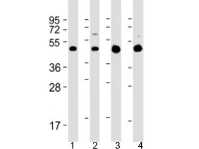 GLUT3 Antibody / SLC2A3