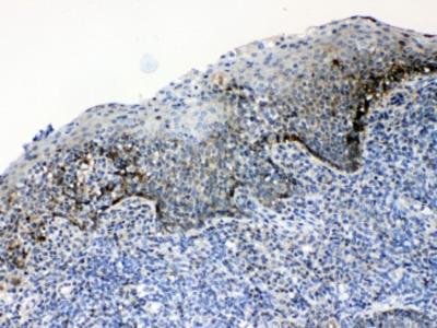 CD166 Antibody