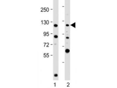 NOP2 Antibody / Nucleolar protein 2