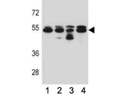 Tubulin beta 8 Antibody (TUBB8)