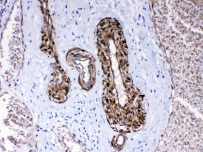 CPI-17 Antibody / PPP1R14A