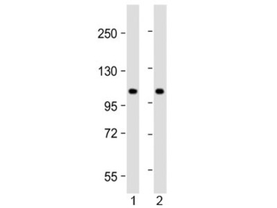ALP Antibody / N-acetyltransferase-like protein / NAT10 (N-Terminal Region)