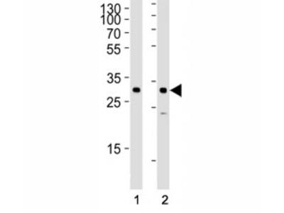 SNAIL Antibody (SNAI1)