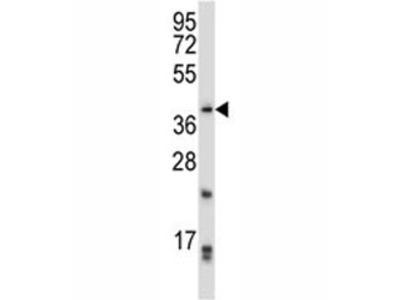 PITX2 Antibody