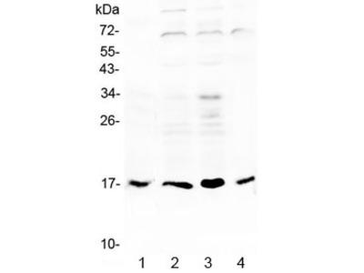 IL-17B / IL-20 Antibody
