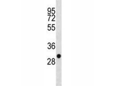 SDHB Antibody