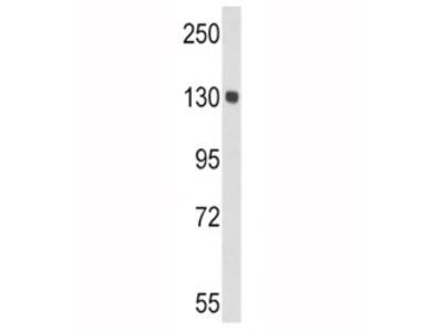 Ceruloplasmin Antibody (CP)