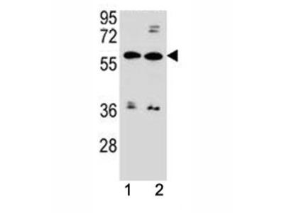 ABCG4 Antibody