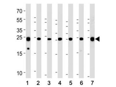 PGP9.5 Antibody (UCHL1)