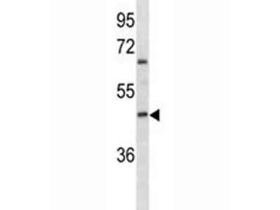 ABO Antibody (Mouse Monoclonal)