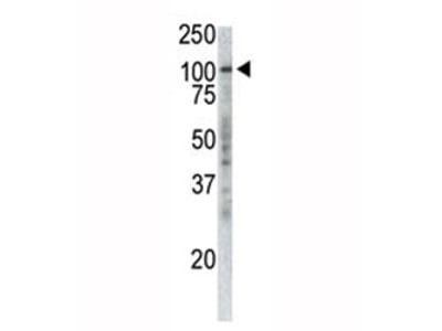 TPX2 Antibody (p100) (Mouse Monoclonal)