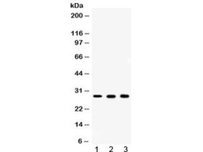 CA2 Antibody / Carbonic Anhydrase II