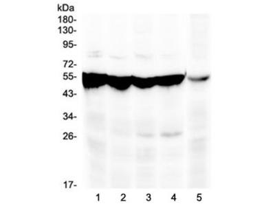 PAH Antibody / Phenylalanine hydroxylase