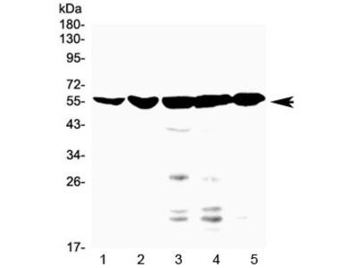 FXR Antibody / Farnesoid X Receptor / Bile Acid Receptor NR1H4 (C-Terminal Region)