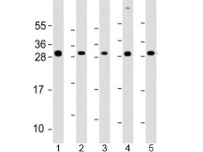 ARD1A Antibody / NAA10