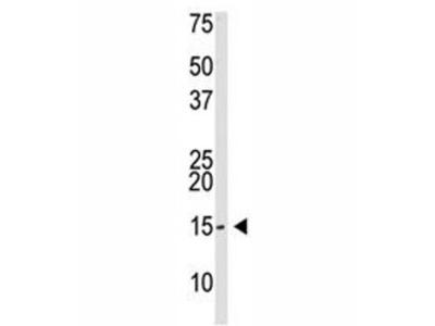 SUMO-3 Antibody